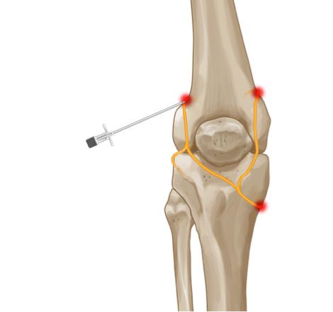 что такое спондилоартроз коленного сустава
